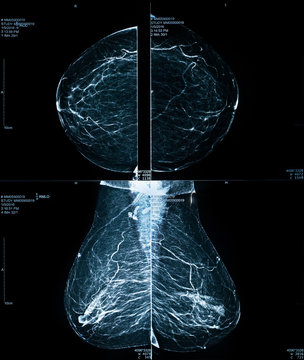 Mammogram / Mammography xray image for breast cancer prevention and diagnosis. Medical technology concept.