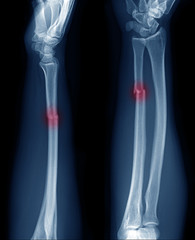 x-ray image show fracture of ulnar bone in arm at red area mark