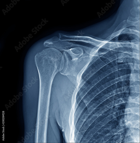 X-ray of right human shoulder joint show humerus, scapular, clavicle ...