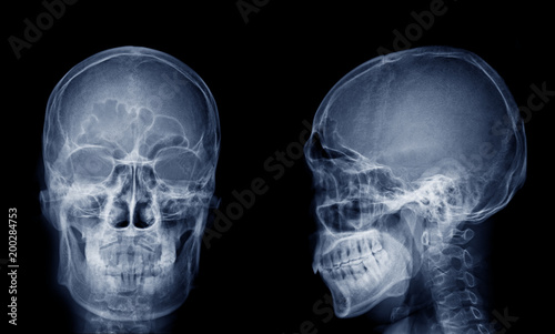 """""""Very good quality X-ray image of normal human skull front ... X Ray Skull 4 Views"""