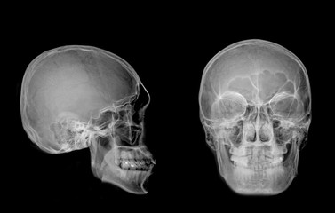 Very good quality X-ray image of normal human skull front (AP) view and side (Lateral) view, Process in normal tone isolated on black background.