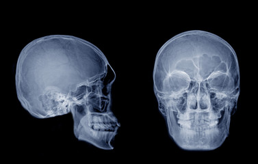 Very good quality X-ray image of normal human skull front (AP) view and side (Lateral) view, Process in blue tone isolated on black background.