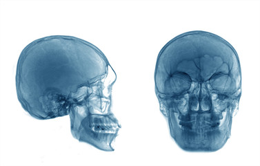 skull xray isolated on white background