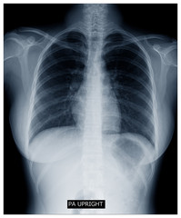 X-ray image of human body chest, very good quality