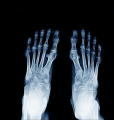 X-ray image of normal foot both side