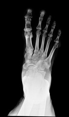 x ray , x-ray image photo of feet front view.