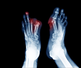 Xray image of diabetic foot ulcer show Joints Collapse and toes amputation