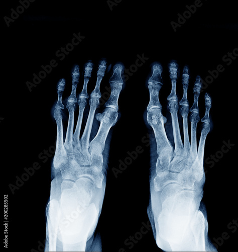 X Ray Image Of Normal Foot Both Side Stock Photo And Royalty Free