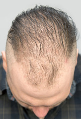 middle age man with hair loss
