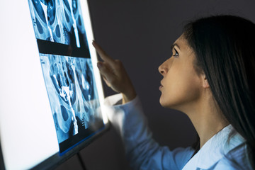 Young female doctor examining the medical x-ray image in hospital office.