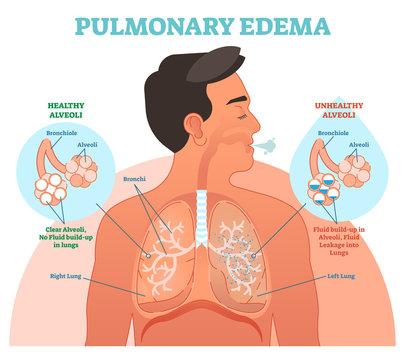 Pulmonary edema, lung problem vector illustration diagram