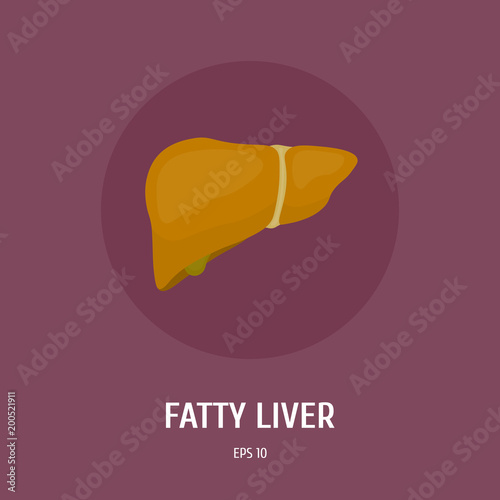 Fatty liver obesity of the internal organs of man diseases of the obesity of the internal organs of man diseases of the digestive system ccuart Images