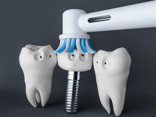 Tooth human cartoon implant- 3D Rendering