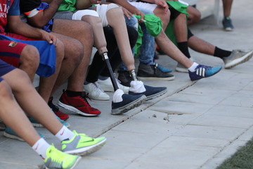 The prosthetic legs of Hussain Al Howicom's, a Saudi born with congenital amputation, are seen in Dammam
