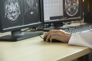 Doctor looking at MRI in computer monitor