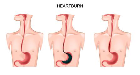 stomach, esophagus, heartburn