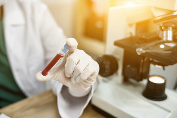 hand of a lab technician or medical doctor holding blood tube test and background a rack of color tubes  and microscope with blood samples other patients in laboratory