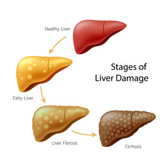 Stages of liver damage. Liver Disease. Healthy, fatty, fibrosis and Cirrhosis. Illustration info-graphic, isolated on white background.