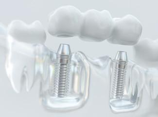 Implants with dental bridge - 3d rendering