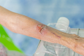 arm wound closeup