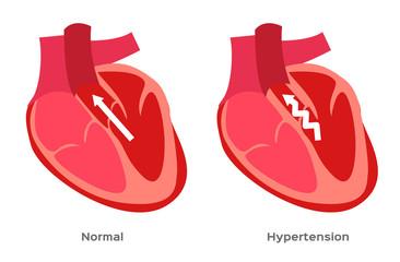 hypertension , high blood pressure vector / human anatomy