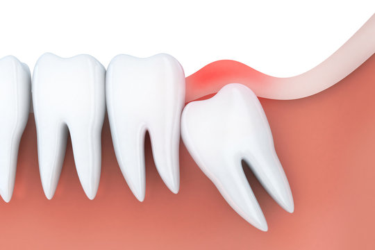 Toothache in wisdom tooth