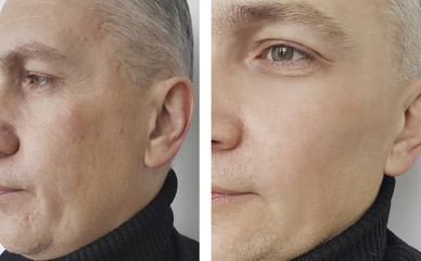 face man wrinkles before and after,