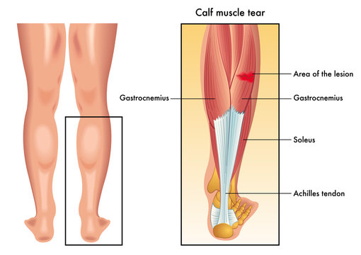 vector medical illustration of the symptoms of calf muscle tear