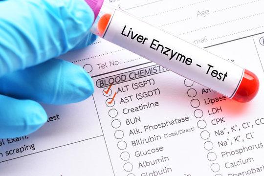 Blood sample for liver enzyme test