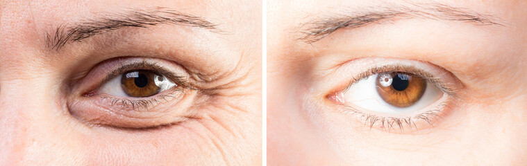 Beauty care to reduce wrinkles and eye bags