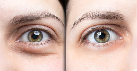 Swollen eye of woman before and after natural treatment to deflate them