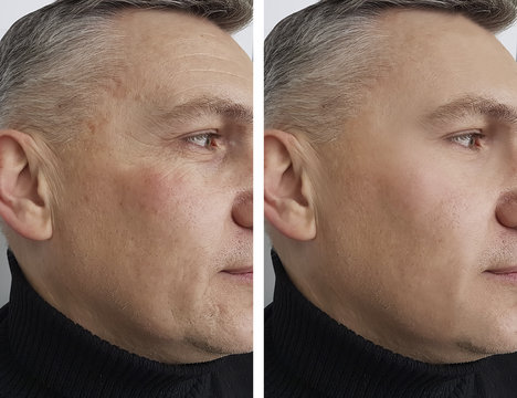 face man man wrinkles before and after