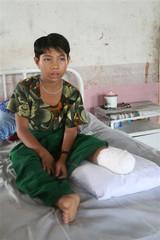 Ma Wah Wah Soe is seen in hospital in Mone Town, Myanmar
