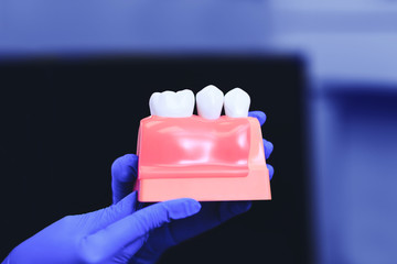 Dental implants and tooth in the hands of real doctor. Dental crown, implants and teeth on model of teeth, best for dentistry conceptual projects. Beautiful healthy teeth for dental implant concept.