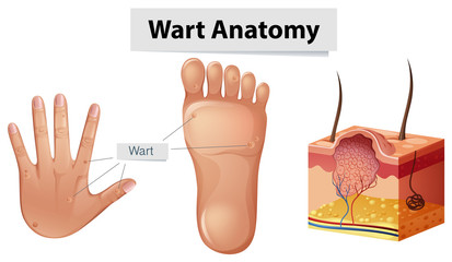 Human Anatomy Wart on Hand and Foot