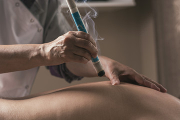 Therapist performing a moxibustion treatment.