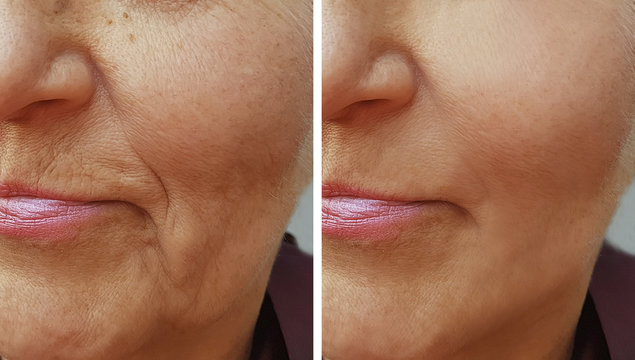 face of an old wrinkle woman before and after