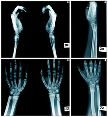 collection of x-ray image, hand x-ray AP and laterl view