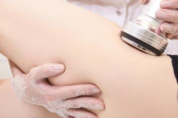 Ultrasonic cavitation. Cosmetic procedures. Modern equipment