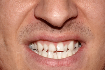 Close-up portrait of man with crooked white ugly teeth, terrible smile. Dental problem, care and toothache