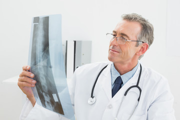 Doctor looking at xray picture of spine in office