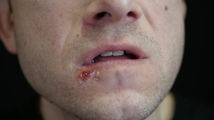 A man applies a curative ointment with a finger on the ulcer on the lips. Herpes - 3. Treatment of the lips.