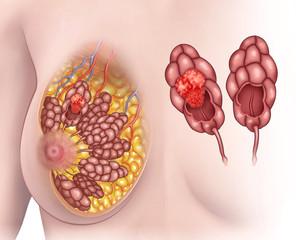 Ilustración de los pechos de una mujer con cáncer en los lóbulos mamarios.