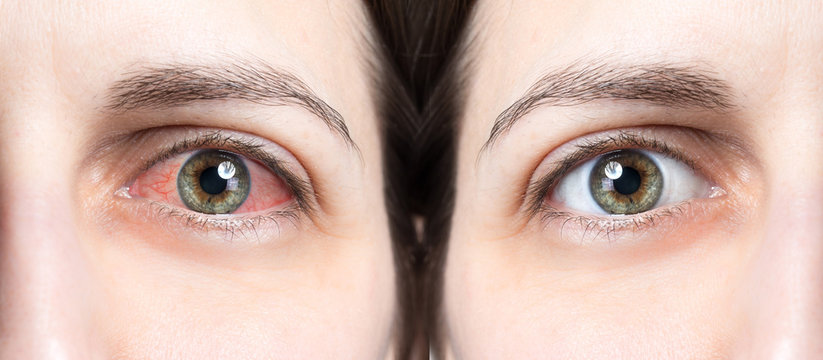 Red eye before and after using eye drops