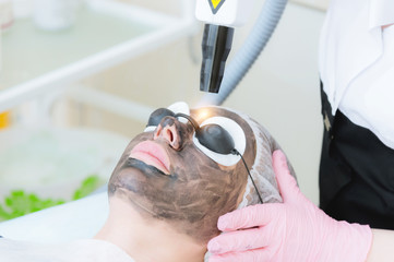 Close-up carbon face peeling procedure. Laser pulses clean skin of the face. Hardware cosmetology treatment. Process of photothermolysis, warming the skin, laser carbon peeling. Facial skin