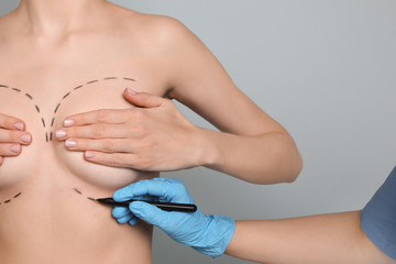 Doctor drawing marks on female breast for cosmetic surgery operation against color background