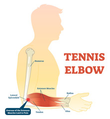 Tennis elbow medical fitness anatomy vector illustration diagram with arm bones, joint and muscles.