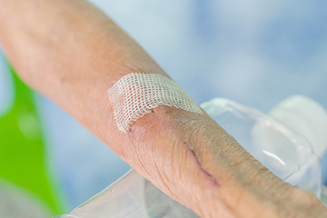 man arm wound