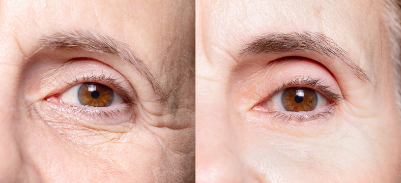 Lady eyes before and after beauty treatment