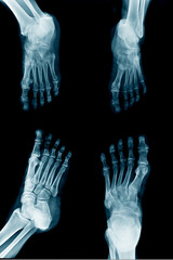 collection foot x-ray multi view